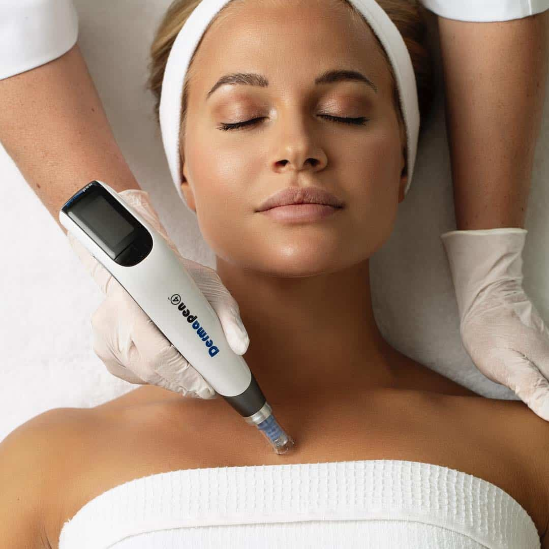 Image of a woman lying on her back having a Dermapen microneedling treatment