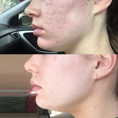 Image of before and after acne microneedling treatments