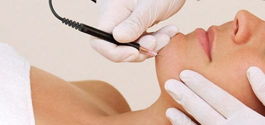 Image of a woman having electrolysis hair removal