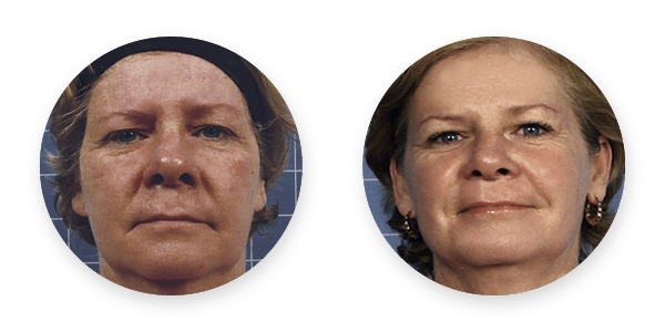 Images of before and after pigmentation microneedling treatments