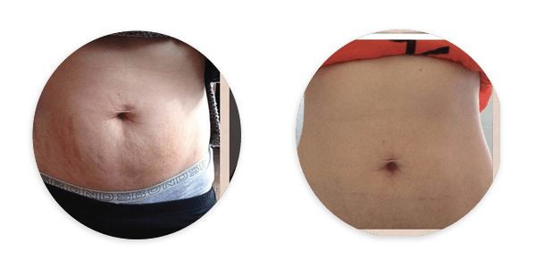 Images of before and after stretch mark microneedling treatments