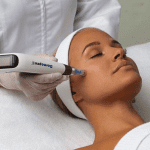Image of a woman having a Dermapen microneedling treatment