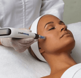 Image of a woman having a Dermapen microneedling treatment