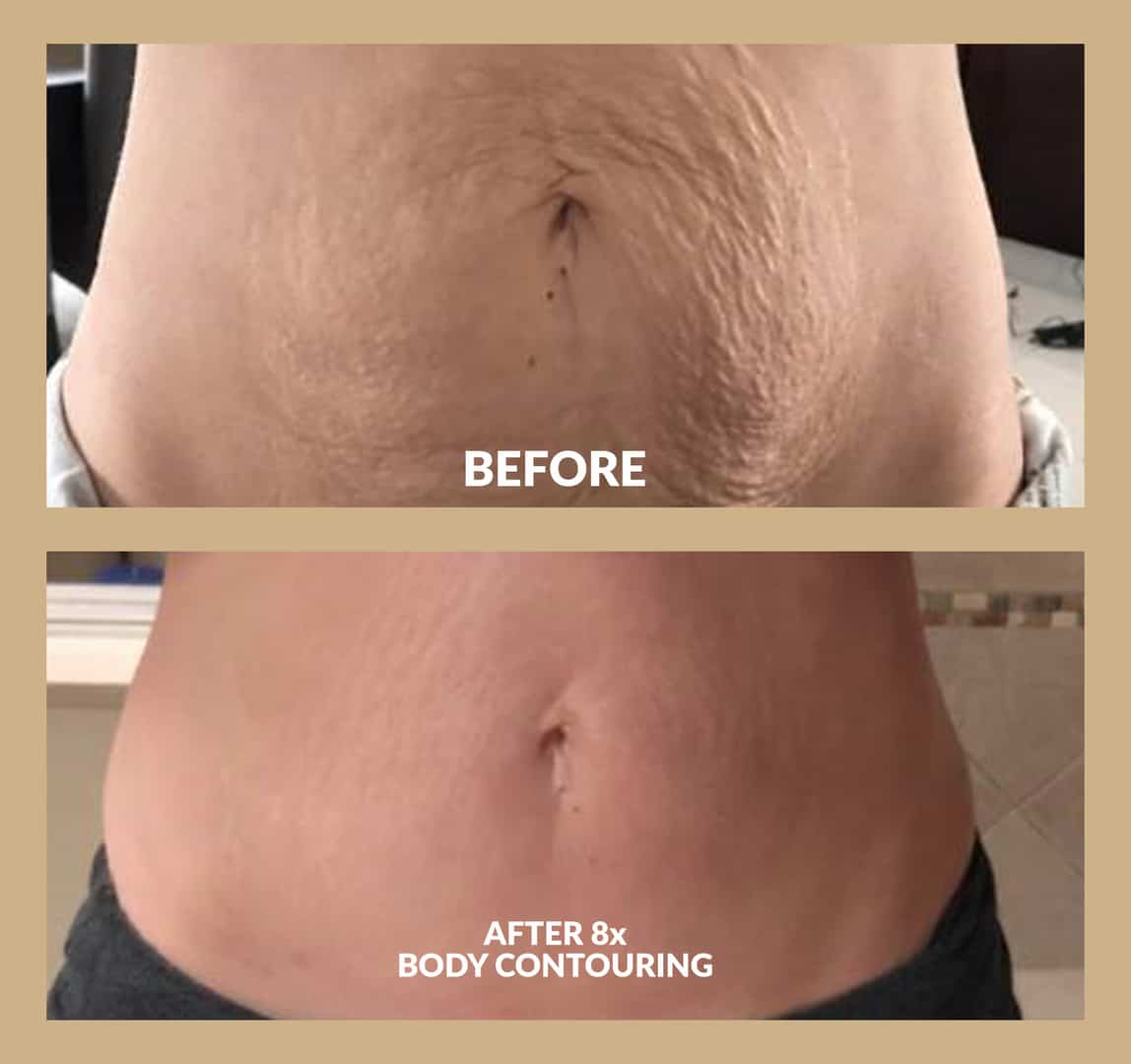 Two images of before and after skin tightening treatments