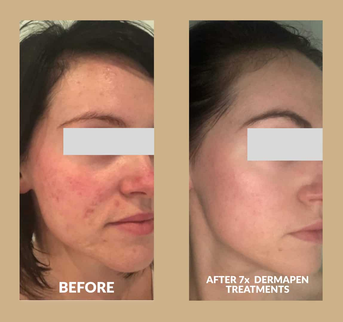 Two images showing before and after dermapen microneedling treatments