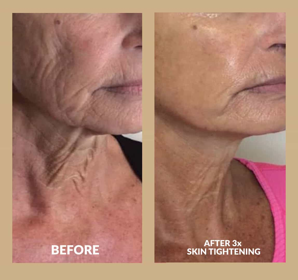 Two images of before and after neck skin tightening treatments