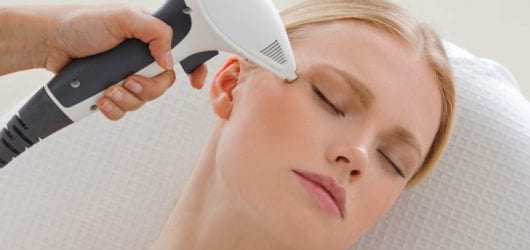 Image of a woman having a skin tightening treatment on her face