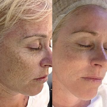 Image of sun pigmentation and anti-ageing before and after Dermapen Microneedling treatments