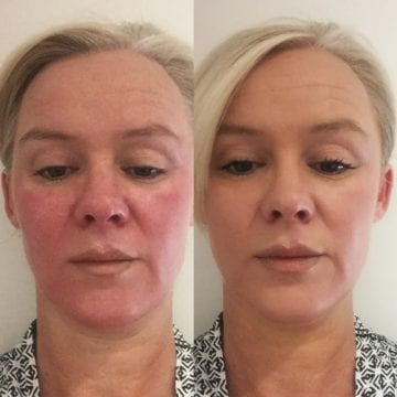 Images of post microneedling treatment, with cover and sun protection.
