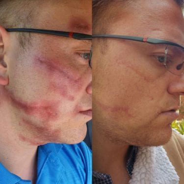 Image of scars and scarring before and after Dermapen Microneedling treatments