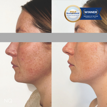 Skin results achieved with Dermapen Microneedling