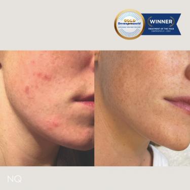 Dermapen Skin results