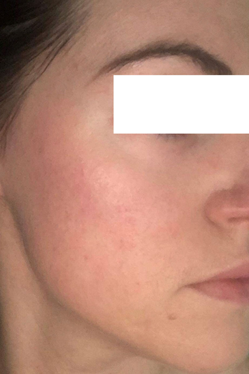 woman after dermapen treatments