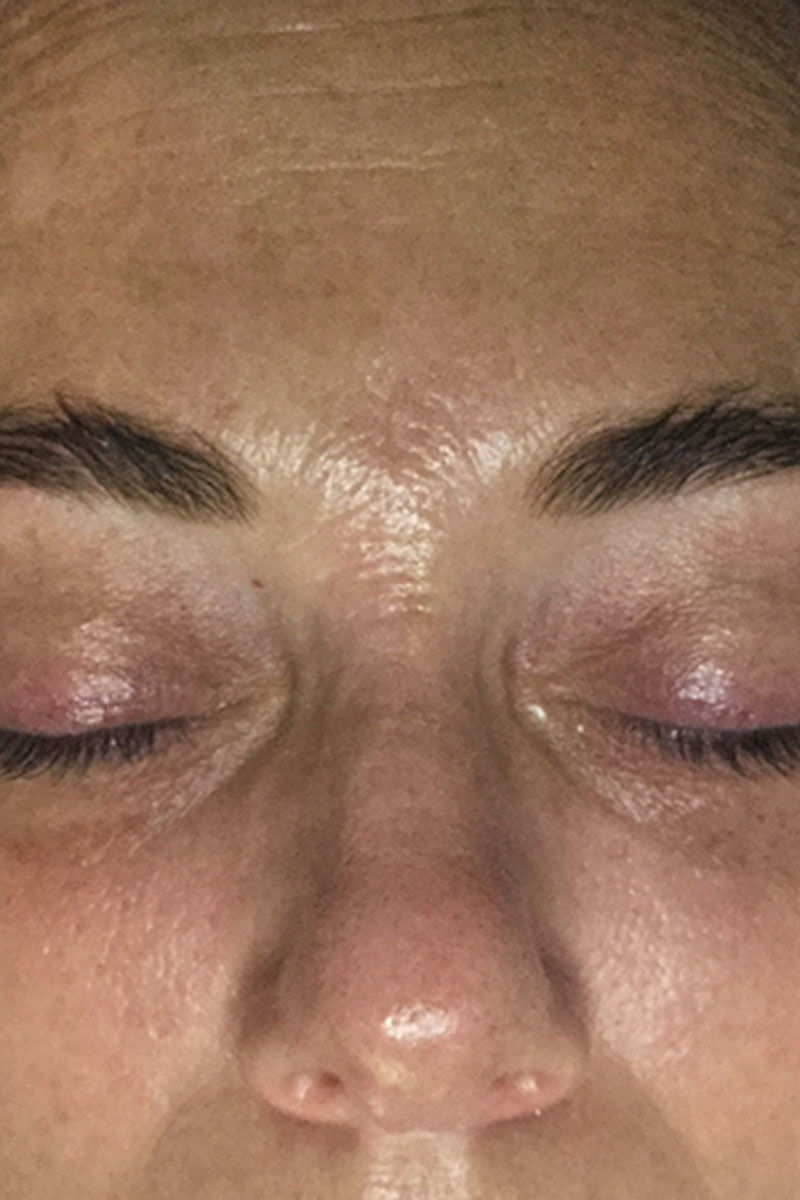 woman after dermapen microneedling