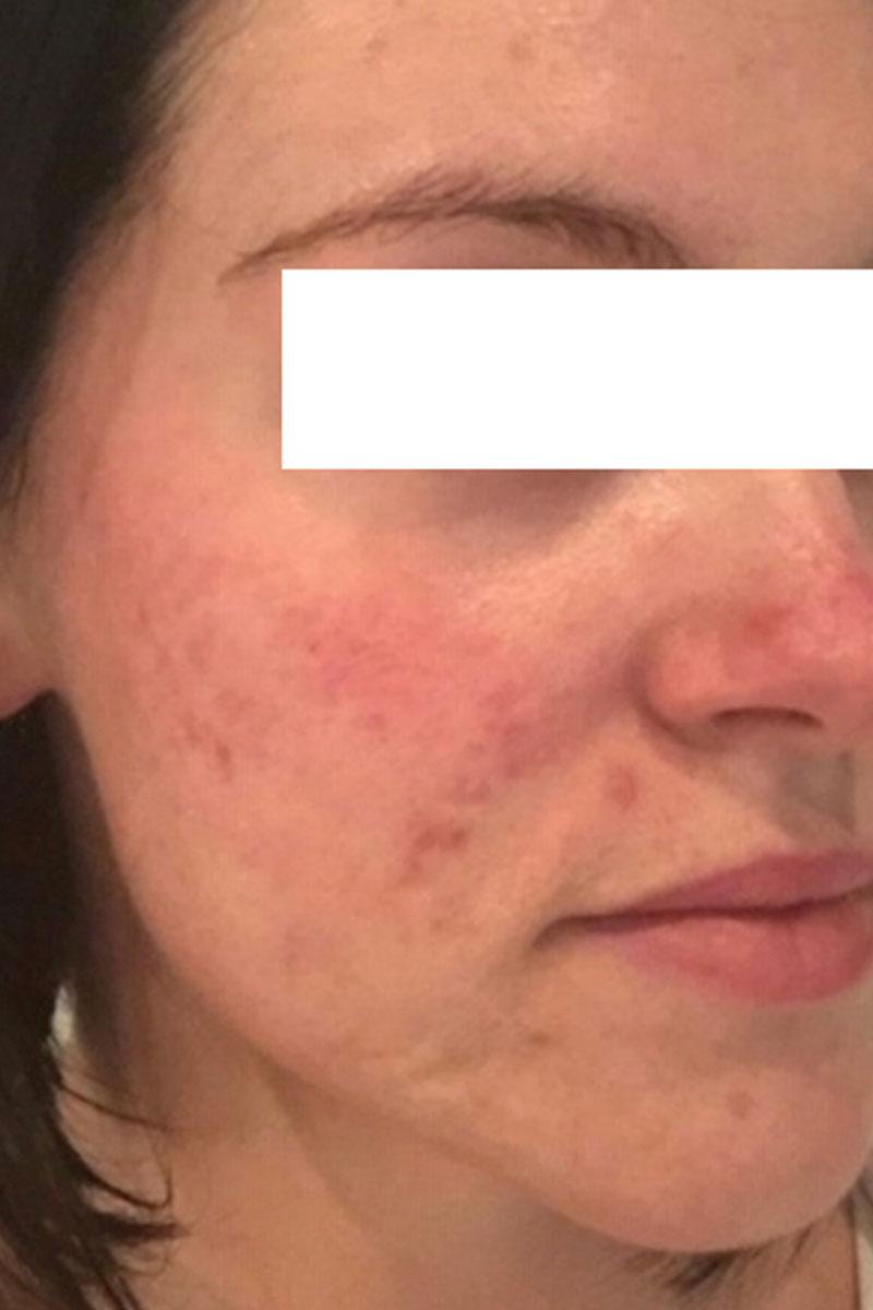woman before dermapen treatments