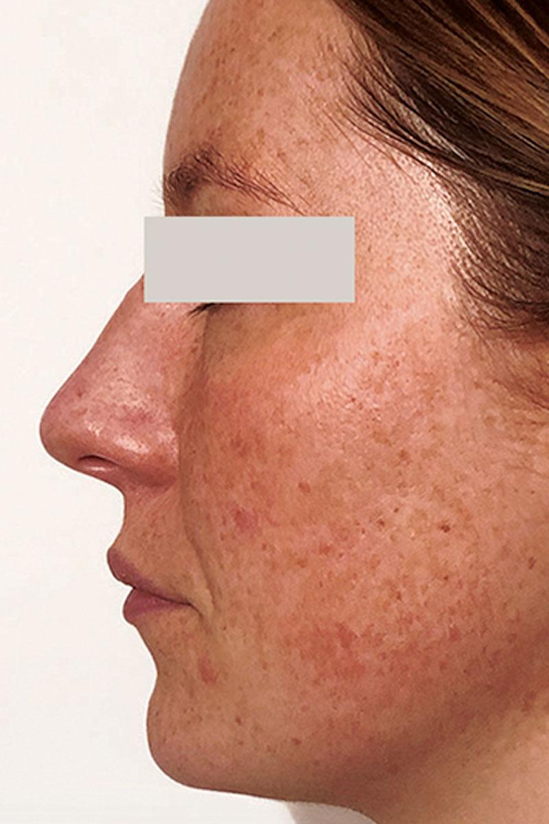woman before dermapen microneedling