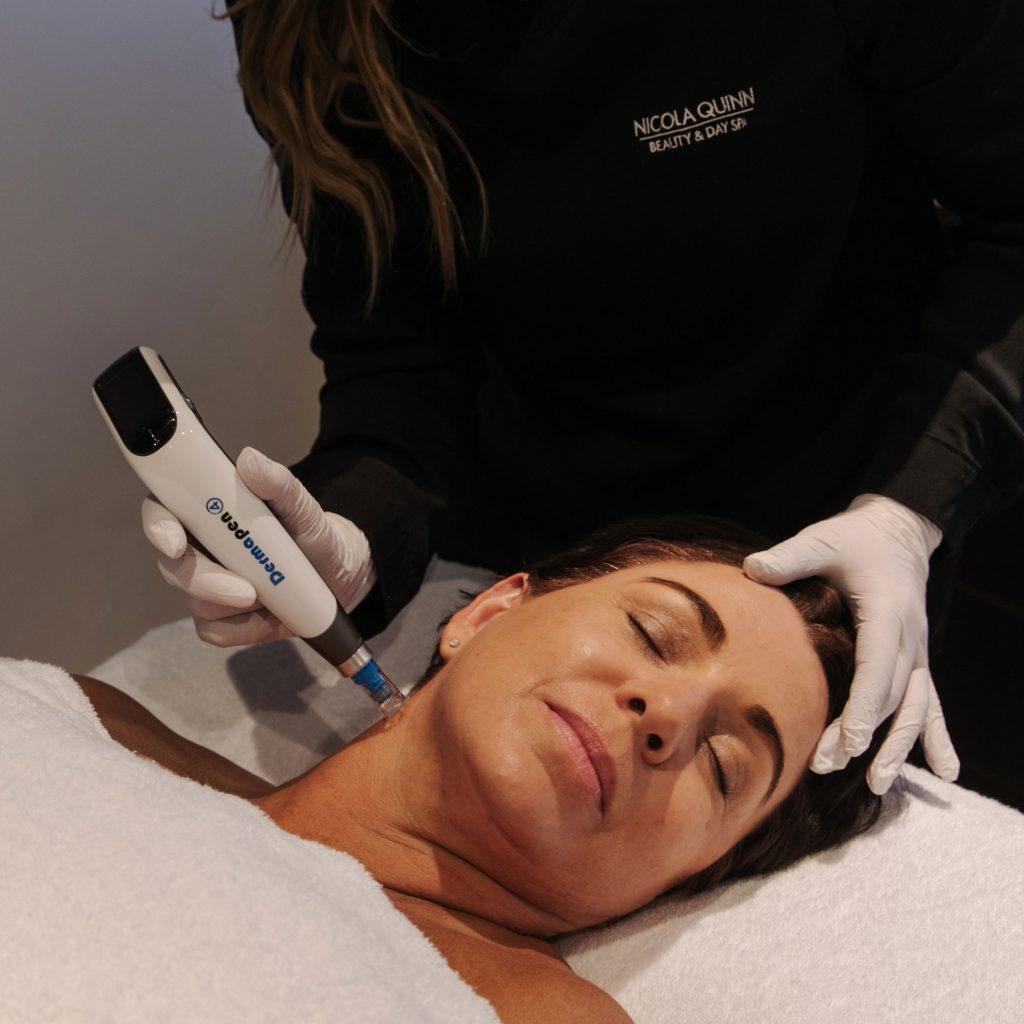 woman having a dermapen treatment in new zealand