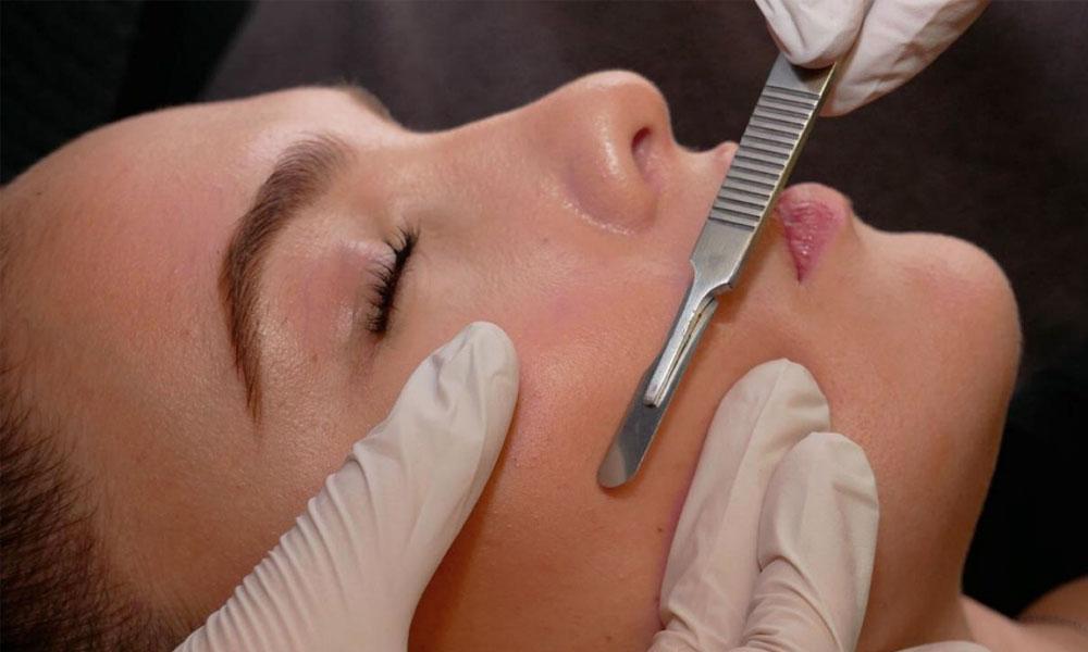 woman having a dermaplaning treatment
